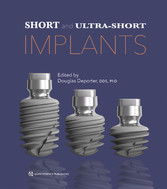 Short and Ultra-Short Implants